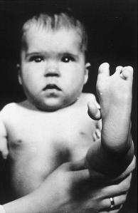 Thalidomide birth defect
